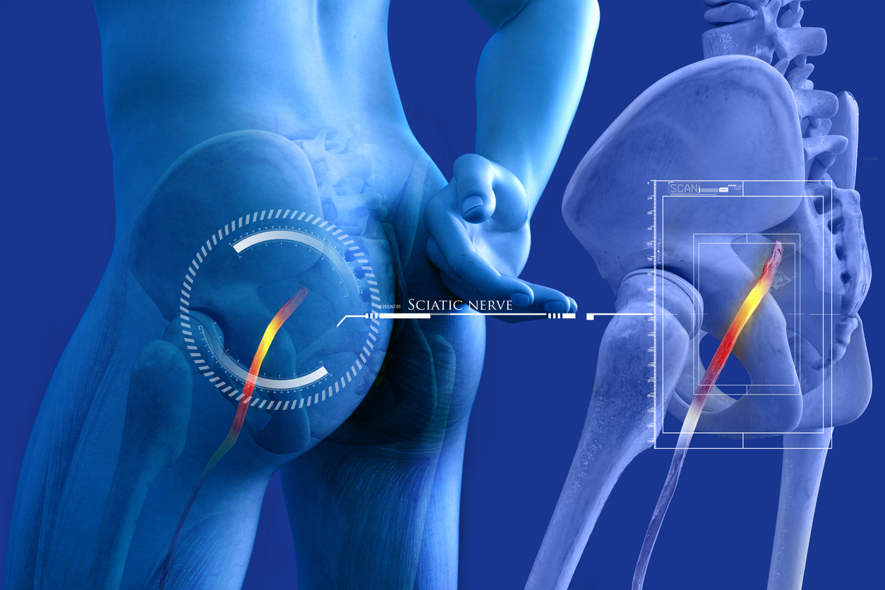 Does Sciatica Go Away on its Own?